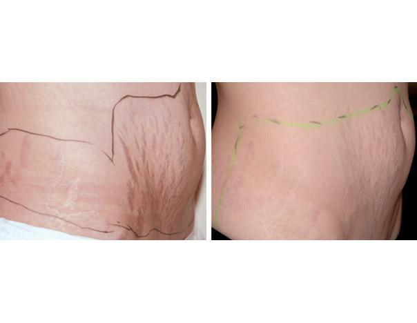 Laser surgery laser surgery effective natural removal of for Stomach tattoos for stretch marks